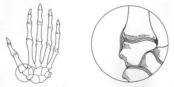 Arthritis of the Basilar Joint of the Thumb - Virginia Hand Center